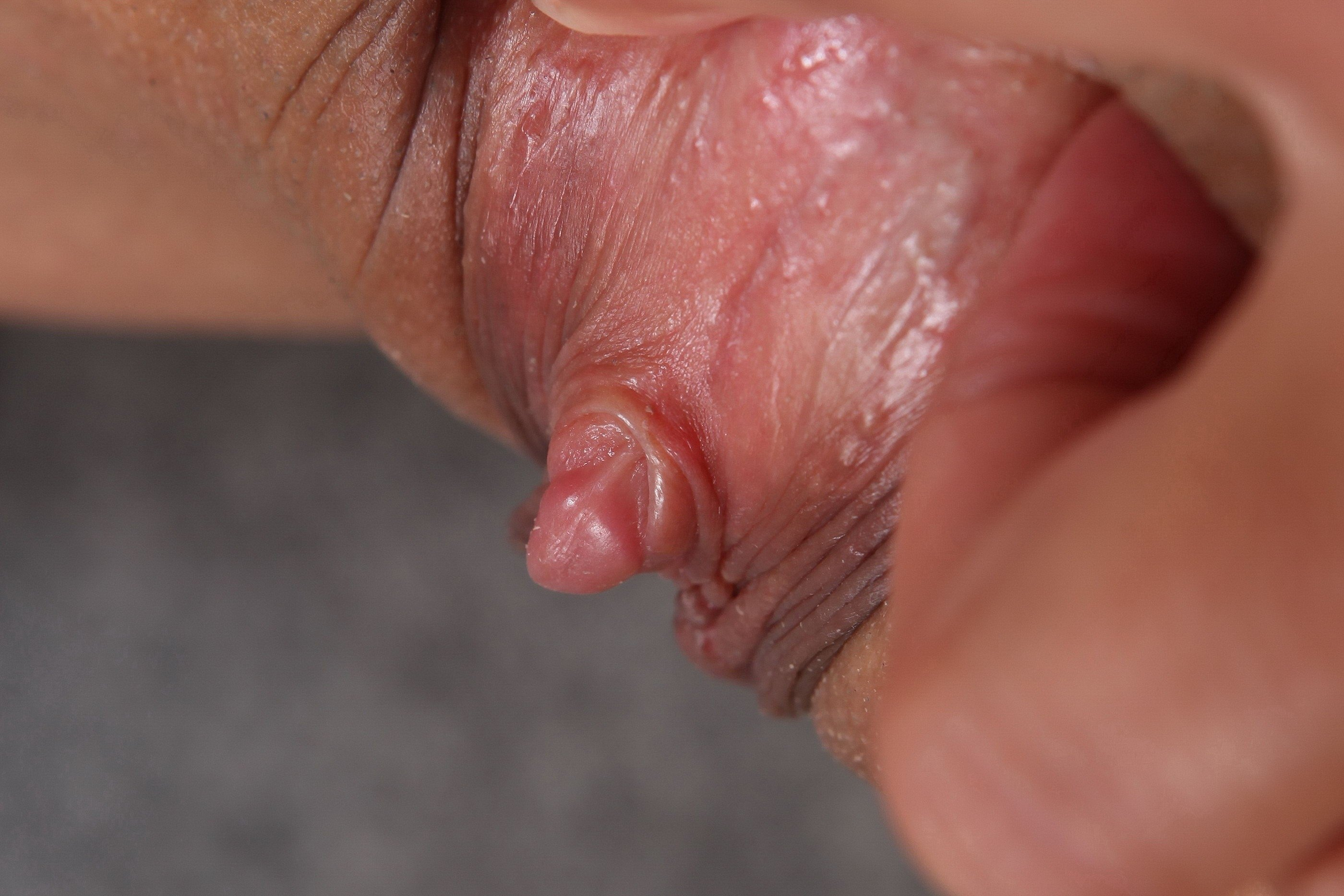 thrush-clitoris-sex-tera-patrik